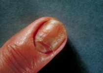 picture of fingernail infection